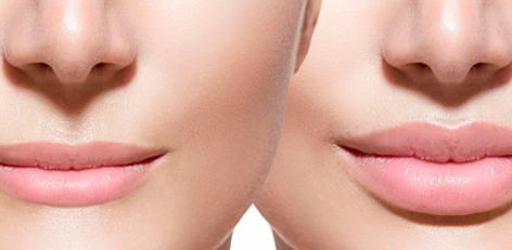 Красивые губы – мечта каждой женщины
