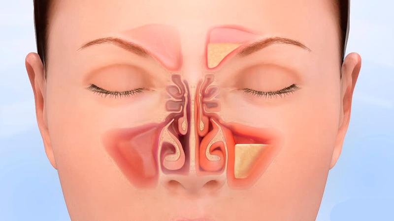 Одышка: что делать, если трудно дышать?