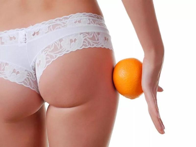 Как убрать целлюлит