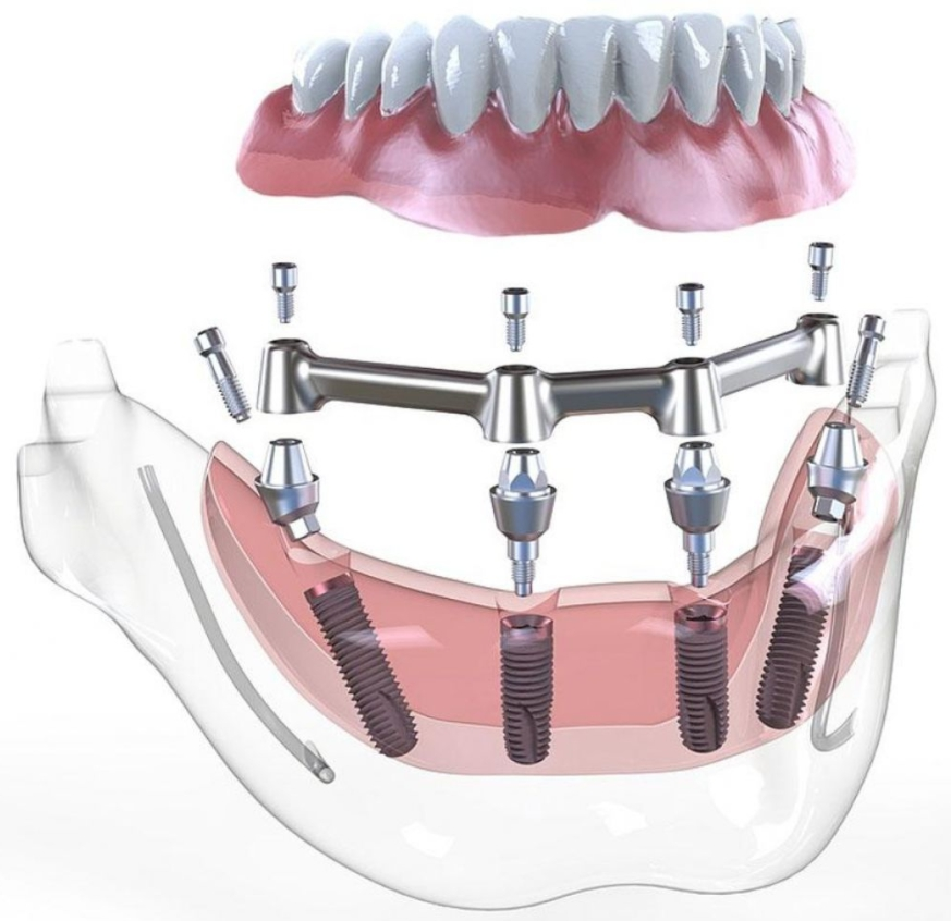 Успешно зарекомендовавший метод имплантации all on 4