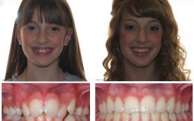 Что делать с кривыми зубами?