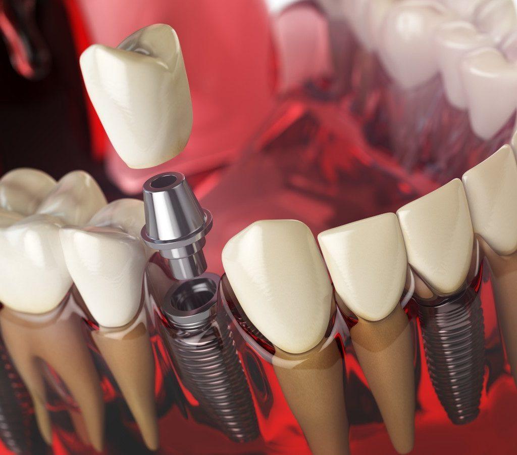 Чем определяется стоимость современной имплантации зубов?