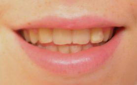 Почему желтеют зубы: 5 неочевидных причин