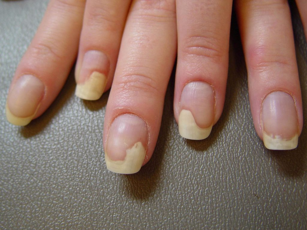 Болезнь к ногтю