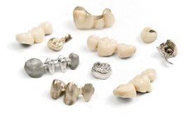 Коронки на зуб: какие бывают?