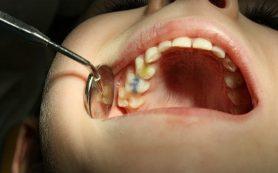 Болит зуб: кариес или пульпит?