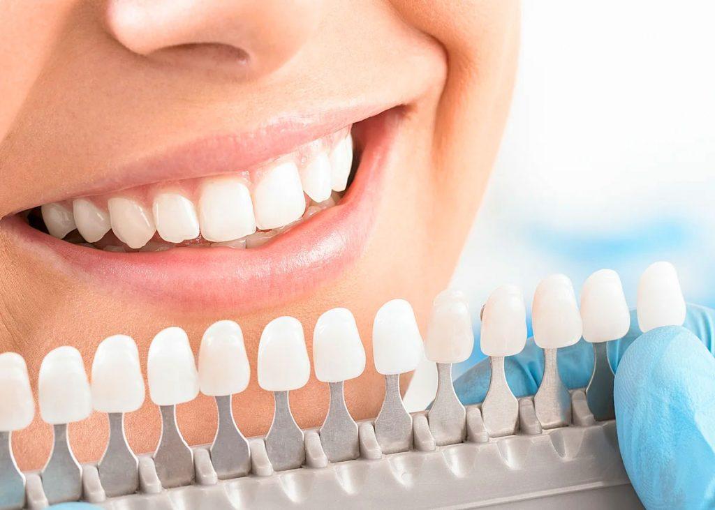 Отбеливание зубов от профессионалов